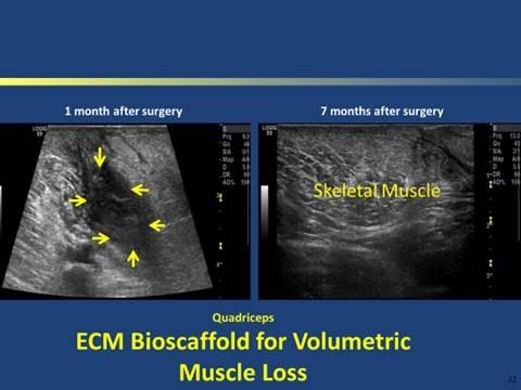 MRI image of a bioscaffold/surgical mesh composed of porcine dermal ECM (XenMatrix™)