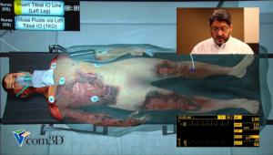 Vcom 3D Burn Patient